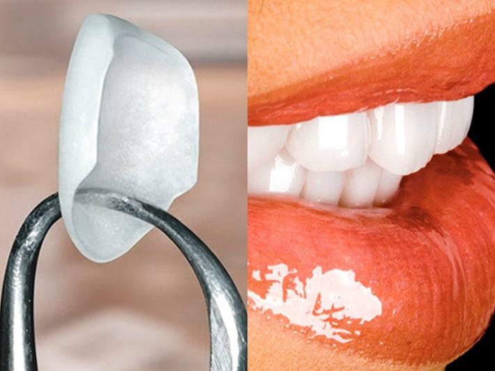 Улучшить эстетический вид передних зубов