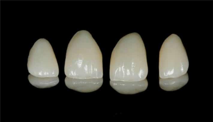Виды виниров для зубов