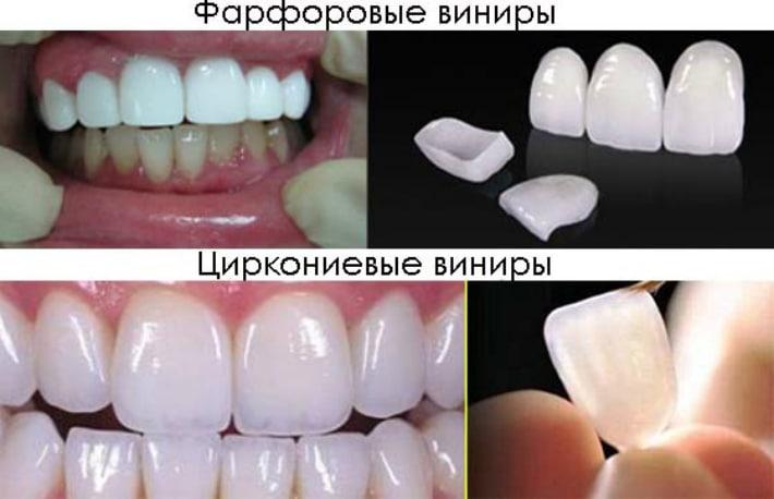 Минипротезы, которые изготавливаются из различных материалов