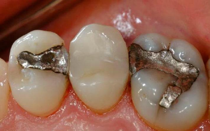 Амальгамовое пломбирование зубов