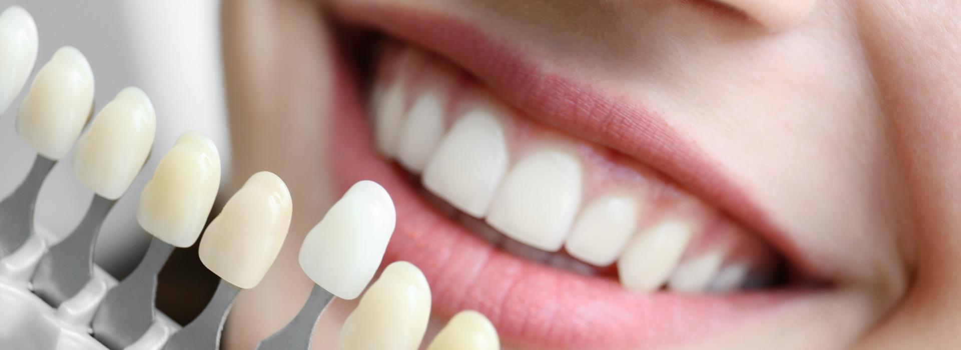 Накладки ставят только на те единицы, которые находятся в зоне улыбки – 6 зубов вверху и внизу.