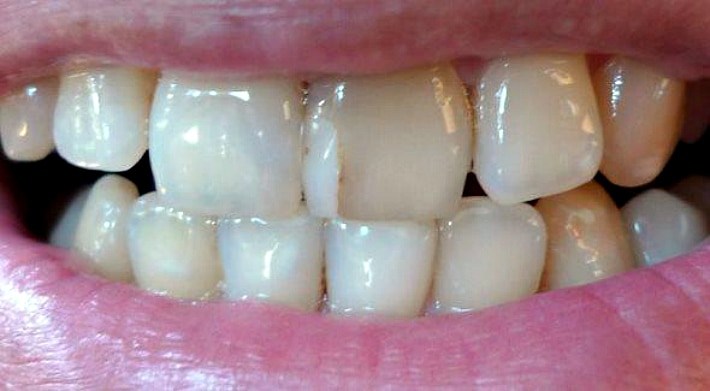 Тонкие пластинки, которые замещают внешний слой зубов