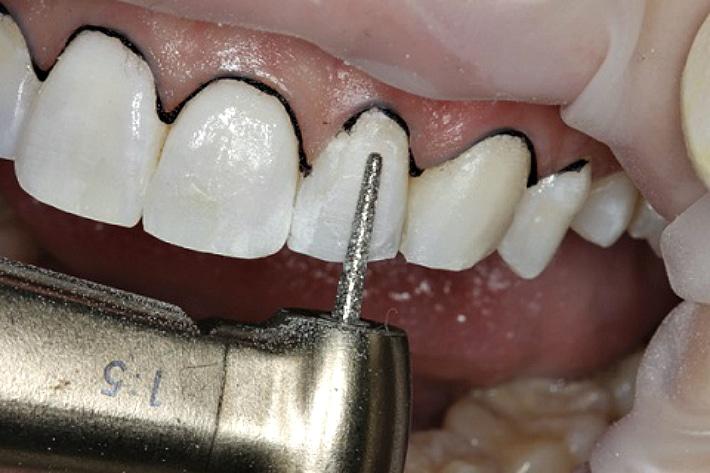 Препарирование поверхности зубов