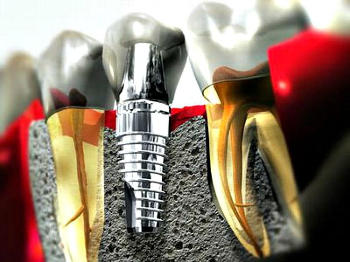 Винтовые зубные имплантаты