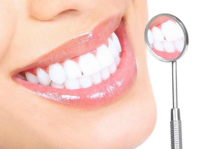 Плюсы и минусы метода внутриканального отбеливания зуба