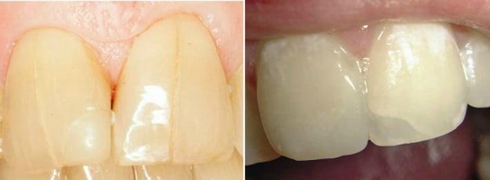 Дефекты зубов и трещины эмали