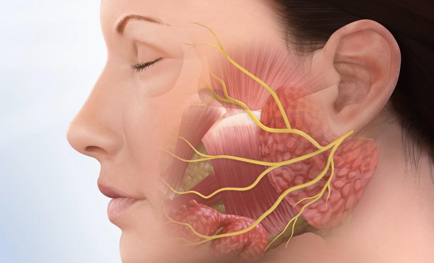 Воспаление нерва