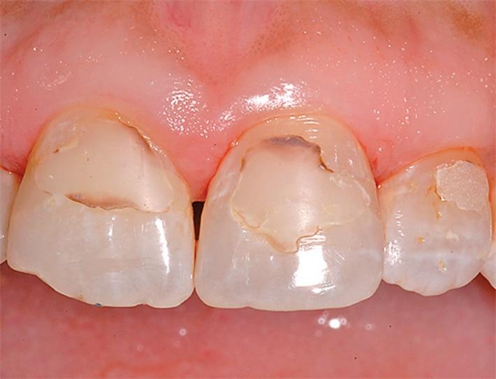 Кариозное поражение запломбированного зуба