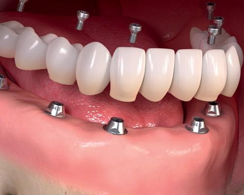 Вживление зубного импланта