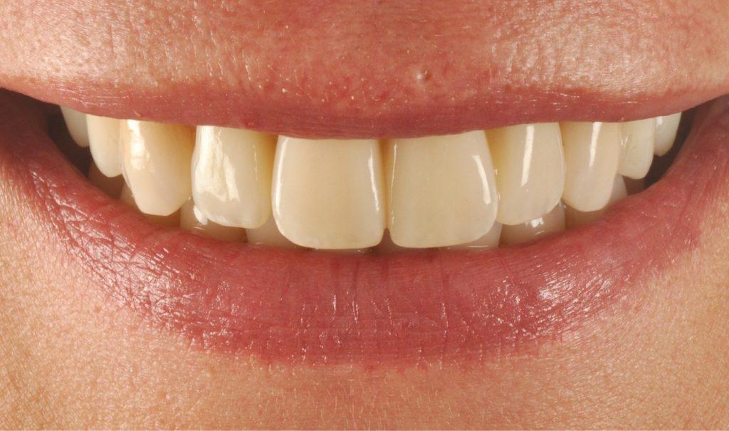 Чем грозит налет на зубах?