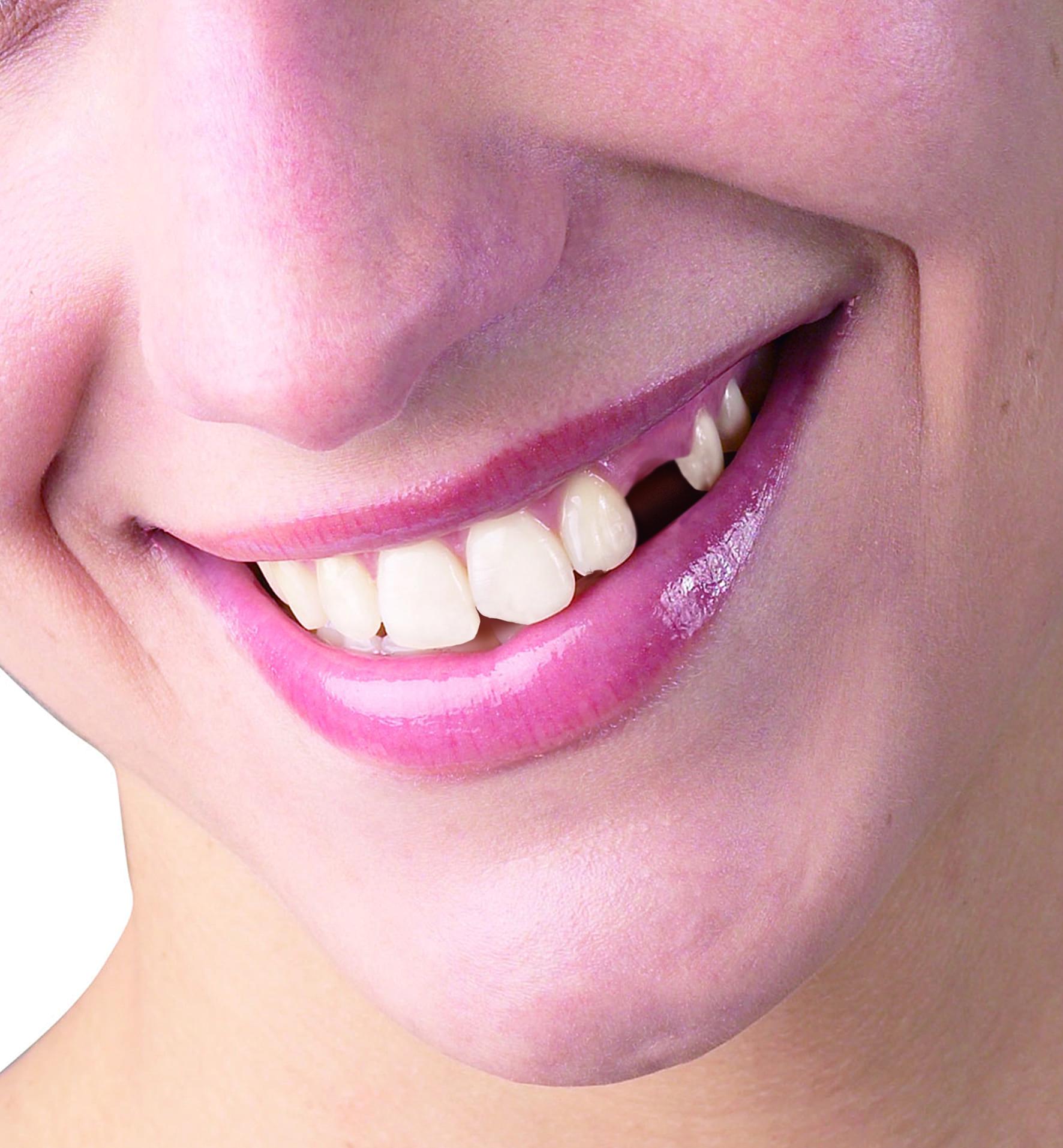 Женщина без зуба