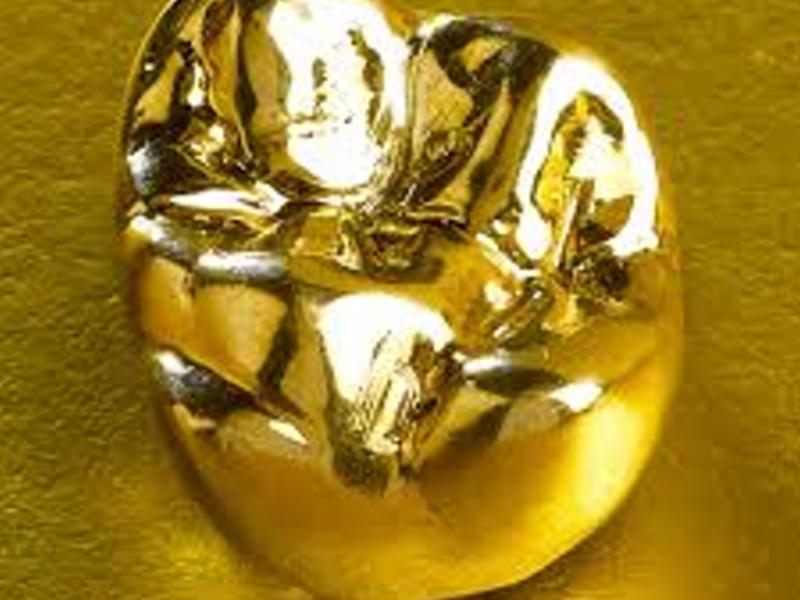 Из какого золота производят зубные коронки