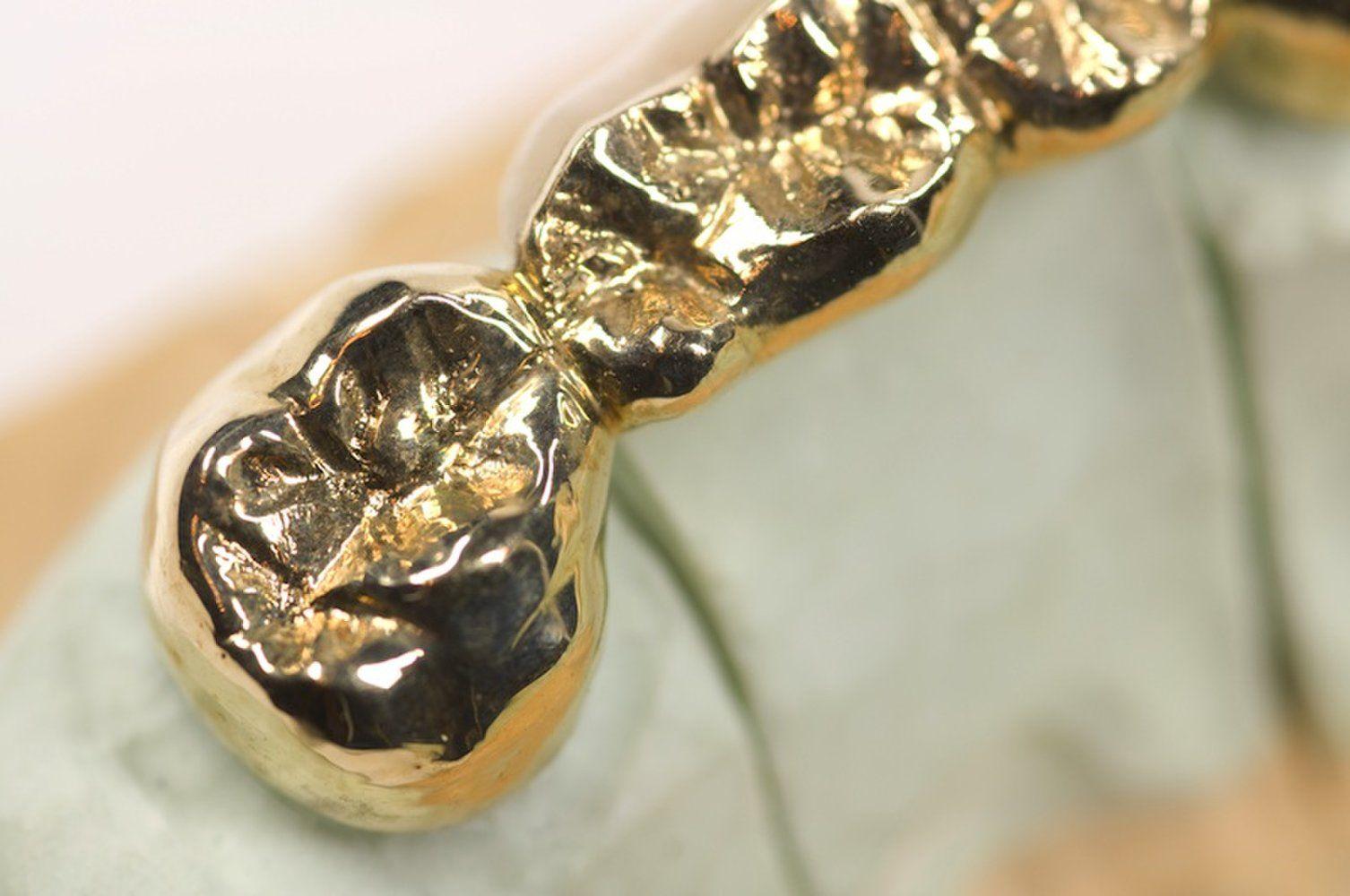 Золотые импланты