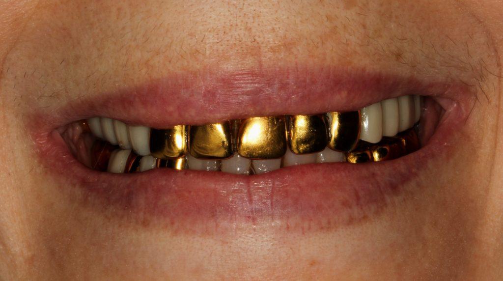 Есть ли боль при установке зубных коронок?