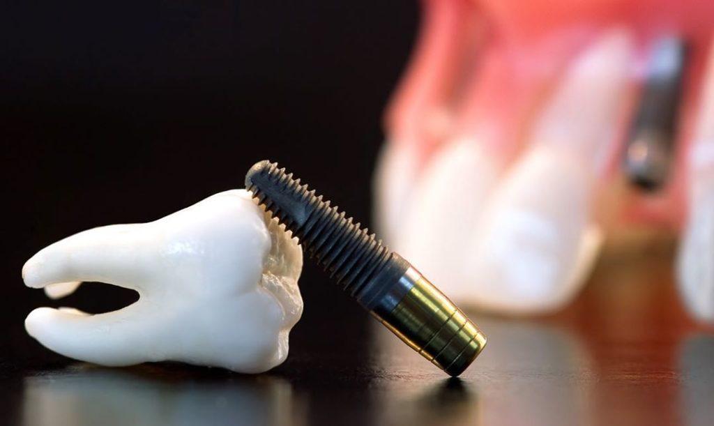 Причины отторжения и что сделать, чтобы зубные импланты дольше служили