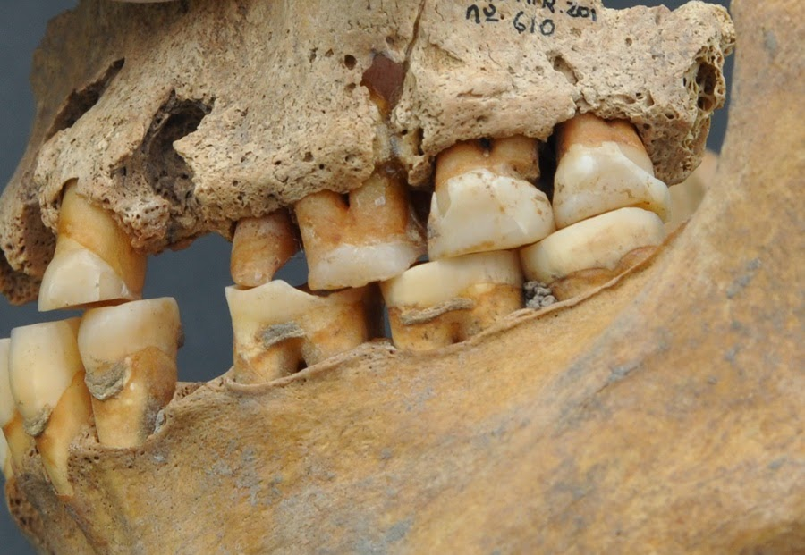 Во Франции найден зубной имплантат, возраст которого более 2 300 лет