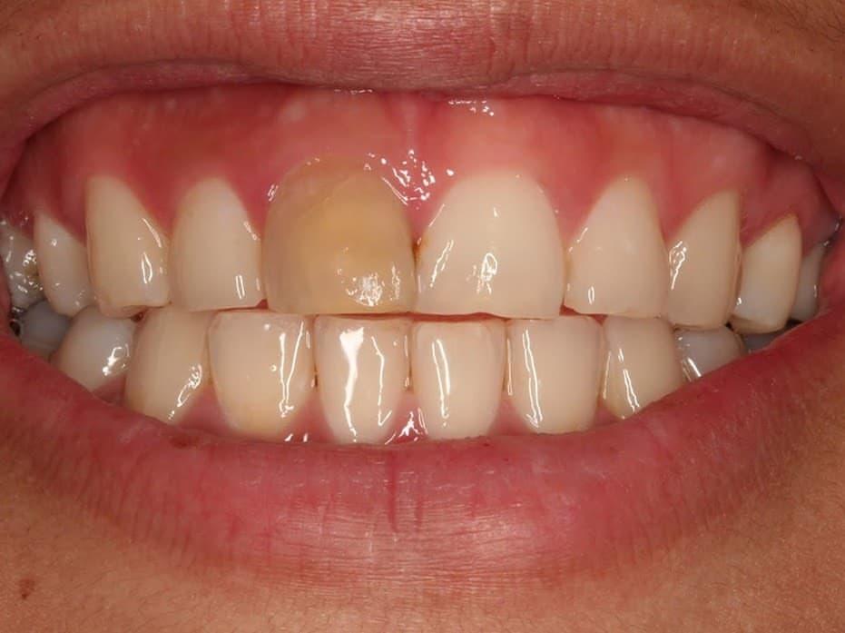 Зуб потемнел