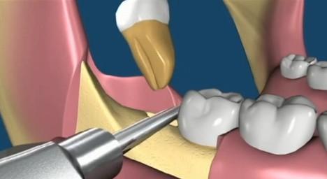 Сотрудники Стоматологического института при Королевском колледже Лондона сообщают: люди скоро смогут выращивать зубы