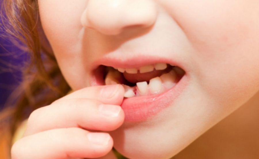 Зуб шатается