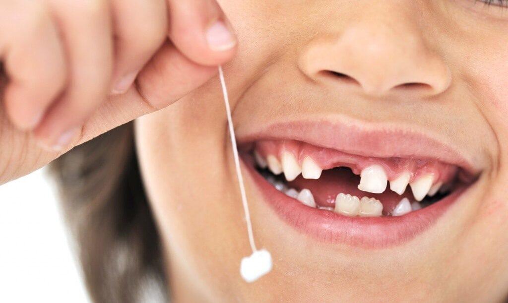 Почему выпадают молочные зубы у детей