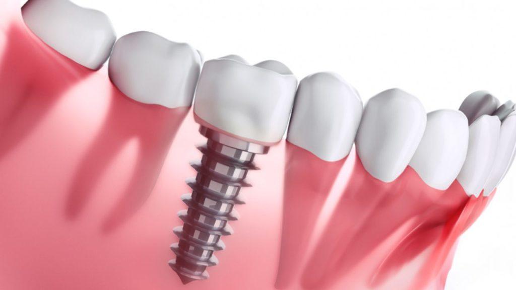 Почему выпадают зубные импланты?