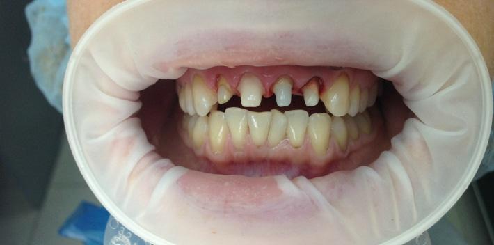 Протезирование живых зубов