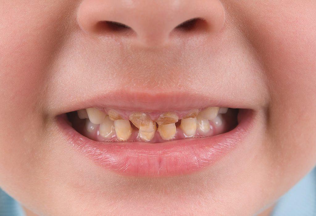 Что такое зубы Фурнье