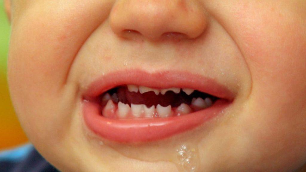 Что такое зубы Гетчинсона