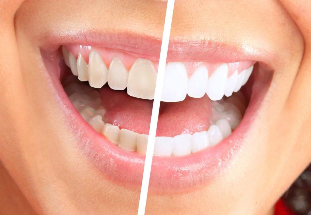 Рот с зубами