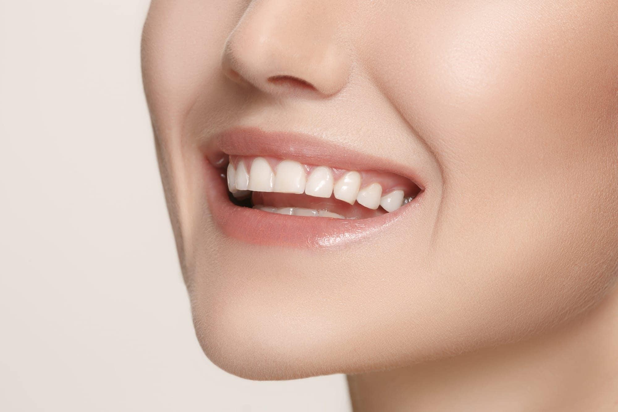 Зубы в улыбке