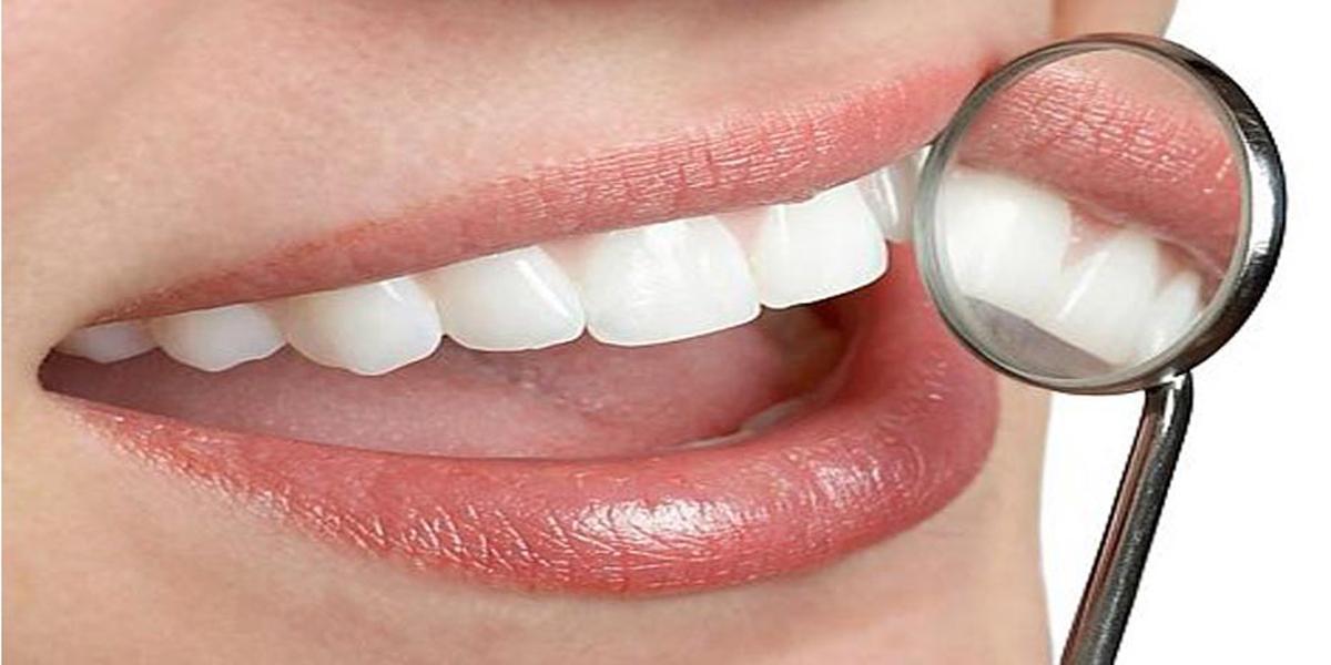 Эстетическое восстановление передних зубов